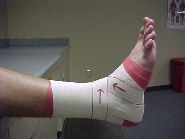 Strapping Ankles
