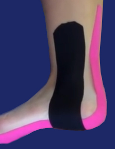 How Kinesiology Tape Works
