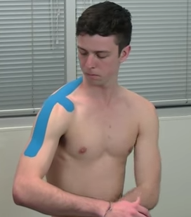 Kinesiology taping shoulder 2